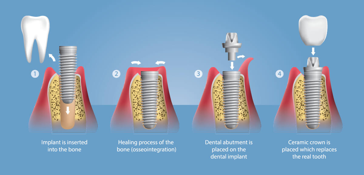 How dental implant procedure is done