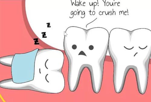 Diagram shows wisdom teeth can grow sideways