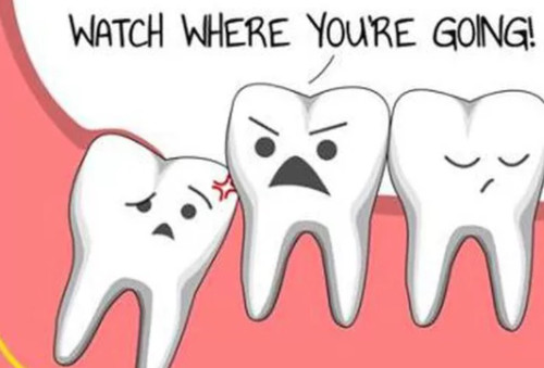 Diagram of wisdom tooth damaging other teeth