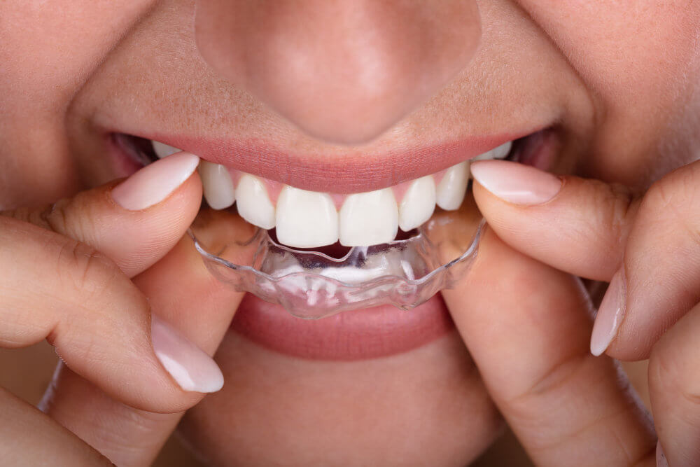 Putting on Invisalign braces