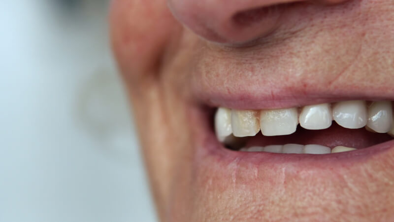 Medicare dental coverage pays for some oral surgery
